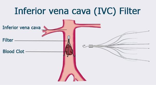 ivc-filter-diagram-min.jpg