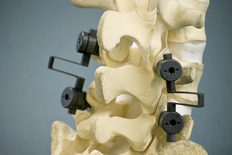 spinalcontrol.jpg